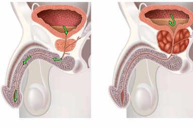 hiperplasia benigna de próstata por el especialista en urología Dr. Gregorio Escribano