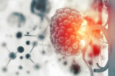 medicina y cirugia urologica. Oncología urológica por el especialista Dr. Escribano